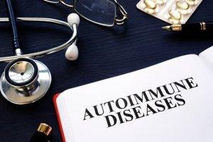 Sjogrens Syndrome Diagnosis